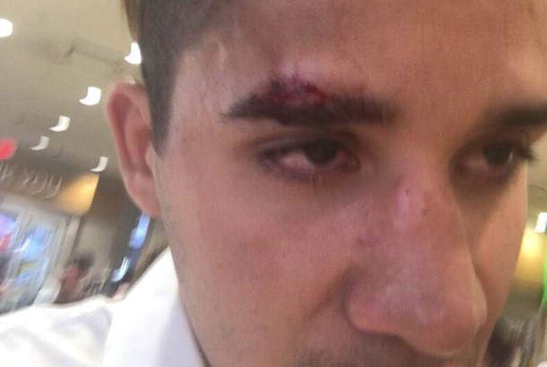 Cops refused hate victim's plea to arrest homophobic homeless attacker