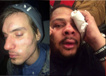 Activists brutally attacked by Donald Trump supporters in New York City