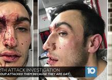 Violent attacks on gay men under investigation in Columbus & Nashville