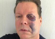 San Diego drag queen club owner beaten while being called anti-gay slur