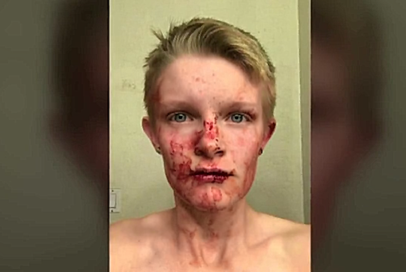 Straight couple chased women down road in pickup before brutal attack