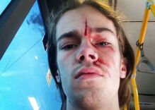 This teen was attacked when he confronted a homophobe in the street