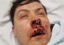 A gay couple was brutally injured by a gang of 4 young men