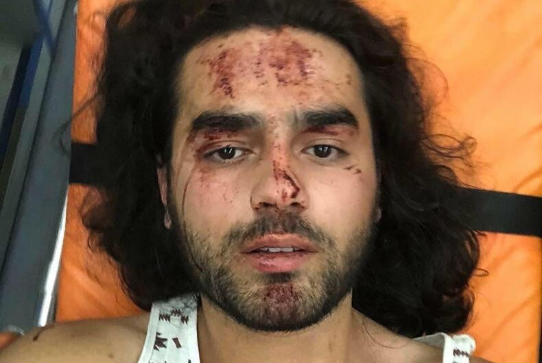 One of the injured activists beaten yesterday in the village of Shurnukh, Armenia.