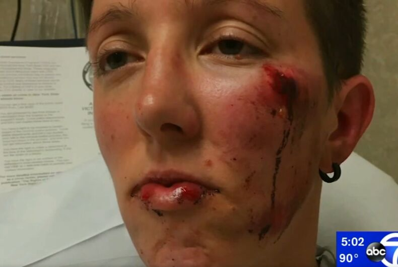 Kimberly Page with her injuries