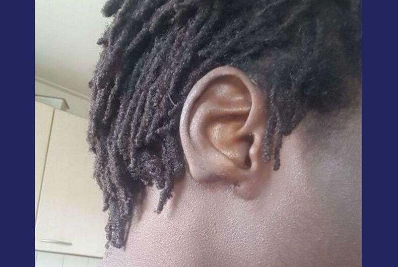 Modou's ear