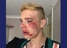 He was beaten after being called anti-gay slurs. Now his picture is going viral.