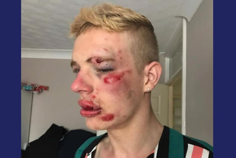 Ryan Williams with a bruised face