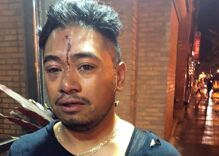After he kissed his boyfriend at the bar, the bouncer approached him. Then it turned ugly.