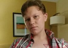 College kicks out trans student for having top surgery