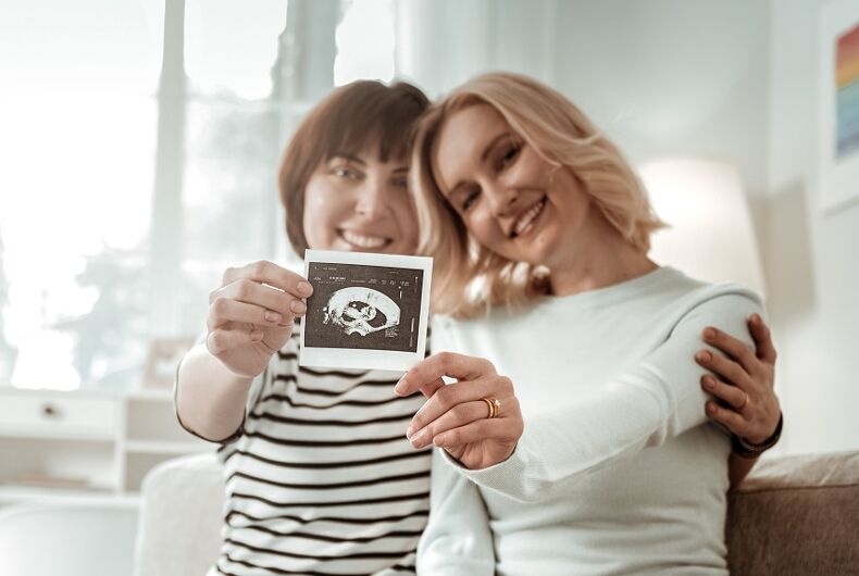 A lesbian couple holds an ultrasound picture