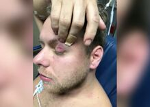 North Carolina gay couple say drunken off-duty cops assaulted them