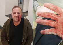 A gay man was attacked by 4 teens with hammers in public. But will they be caught?