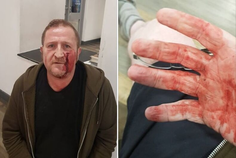 Marc Power was attacked earlier this week by teenage boys with hammers.