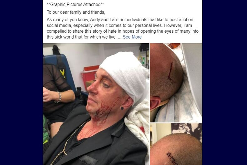 One of the victims posted pictures of another victim's injuries to Facebook.
