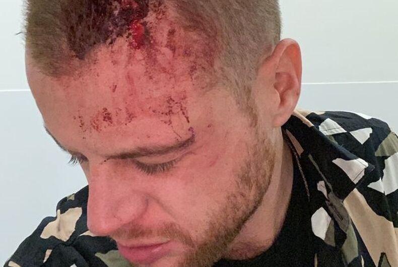 Christopher Haughey's injuries