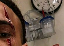 A gay man was beaten with a shovel & slashed across his eye with a box cutter