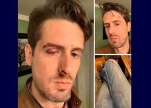 Bartender knocked unconscious & others injured as 2 men attacked a gay bar