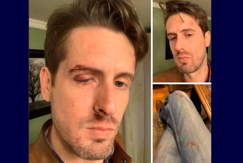 Social media post of a victim of the attack