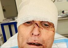 Gay man's face was cut up with a meat cleaver in vicious hate crime