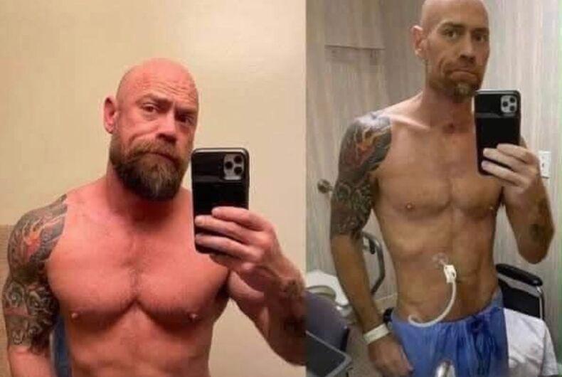 Winter Party attendee who caught coronavirus posts shocking photo of virus' effect on his body