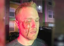 """Gay man called """"fa***t"""" & beaten unconscious. That's a misdemeanor & not a hate crime in Oklahoma."""
