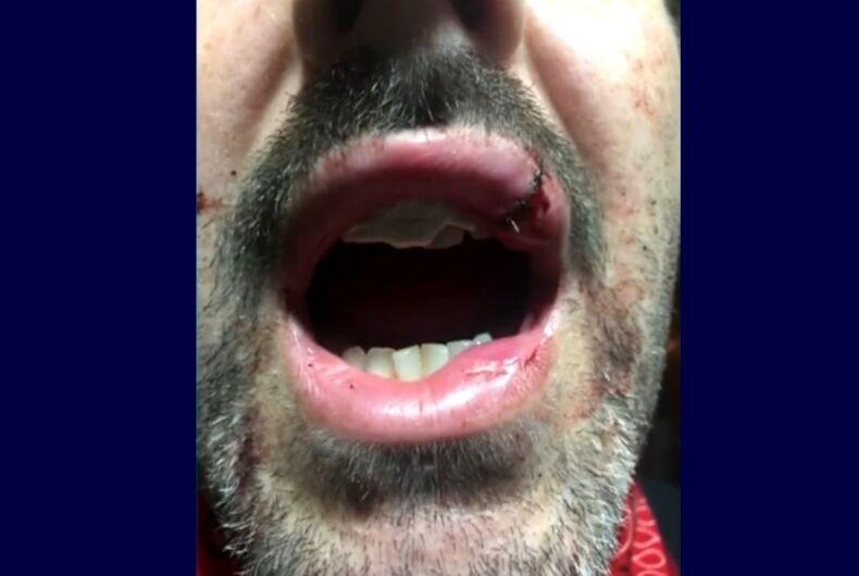 Tom Anderson's injuries