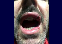 Gay man loses two front teeth in horrifying attack after putting up a rainbow flag