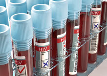 Two men found with a completely drug-resistant form of HIV. Doctors are worried.