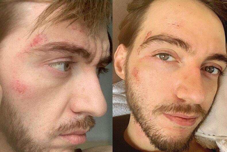 Eric's injuries
