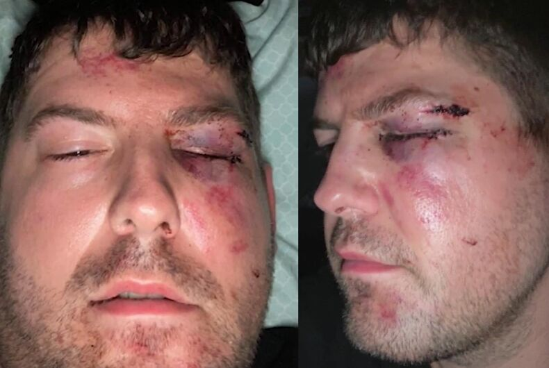 One of the victims of the alleged hate crime