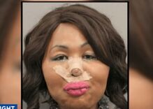 Trans woman busted for bank robbery after she uses cash to pay for plastic surgery