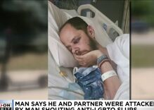 Thug shouting slurs fractures gay man's skull as his partner screams for help