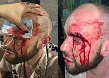 Gay man thought he was going to die in terrifying gang attack