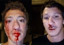 Gay couple beaten by bloodthirsty mob for dancing together at a bar