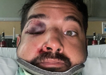 Man gets knocked unconscious & beaten by two complete strangers in park for being gay