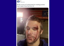 Stranger beat man with a wine bottle for holding hands with another man